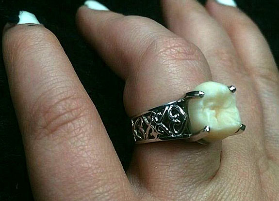 How Did Wisdom Tooth Jewelry Become a Thing? | The Jeweler Blog